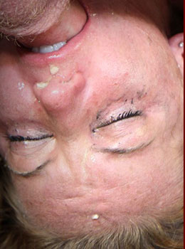 Facial Abuse Destroys Ivy Monroe